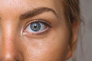 Santé de la peau